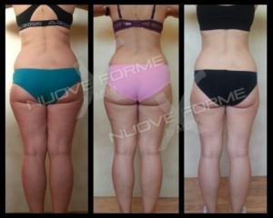 Come Eleonora ha cambiato le sue forme in pochi mesi grazie al nuovo stile di vita nel Metodo Nuove Forme